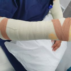 Forearm cast