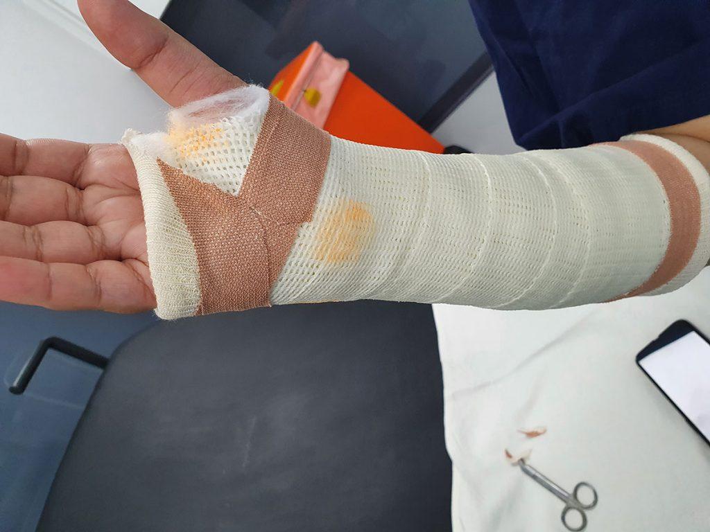 forearm cast points 2