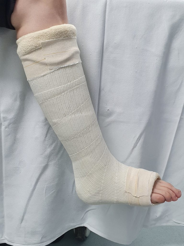 Picture of cast from calf till the mid of the feet