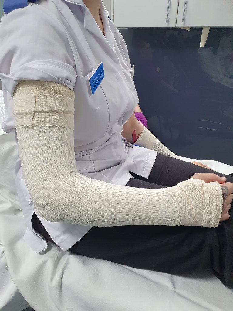 Picture of cast from bicep till knuckles