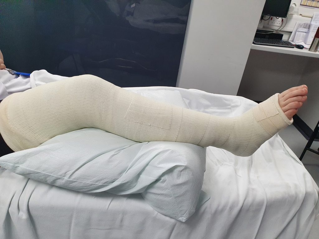 picture of cast from thigh till mid of the foot