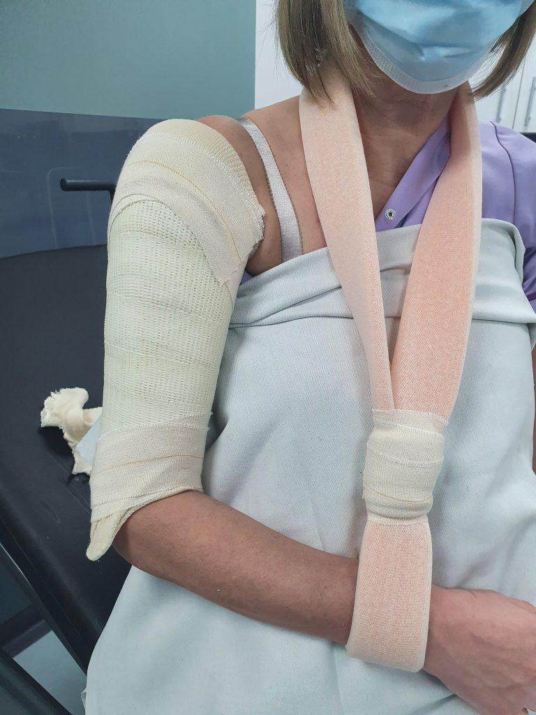 Humerus plaster cast